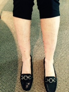 Janes Legs after 4-2015